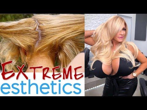 EXTREME Aesthetics