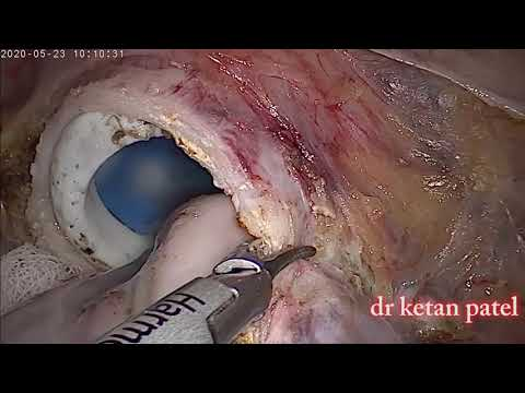 Dr. Manish Patel explains the Jiffy Knee vs. how other surgeons do the surgery.из YouTube · Длительность: 4 мин41 с