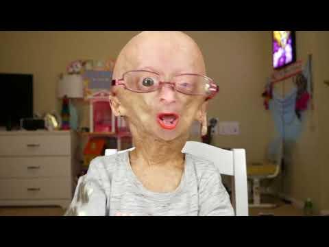 dalia rose  Adalia Rose gets her checkup at Boston Children's Hospital - YouTube