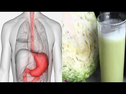 How To Make Cabbage Juice For Healing Stomach Ulcers And Open Sores!