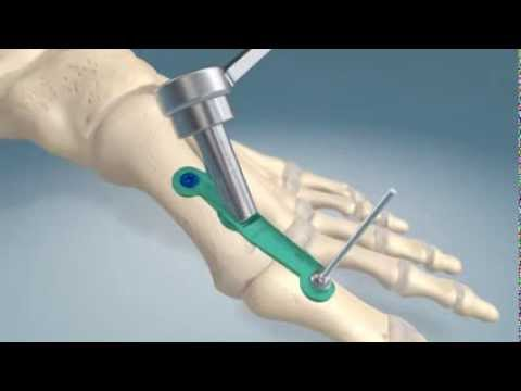 1st metatarsal-phalangel joint fusion procedure
