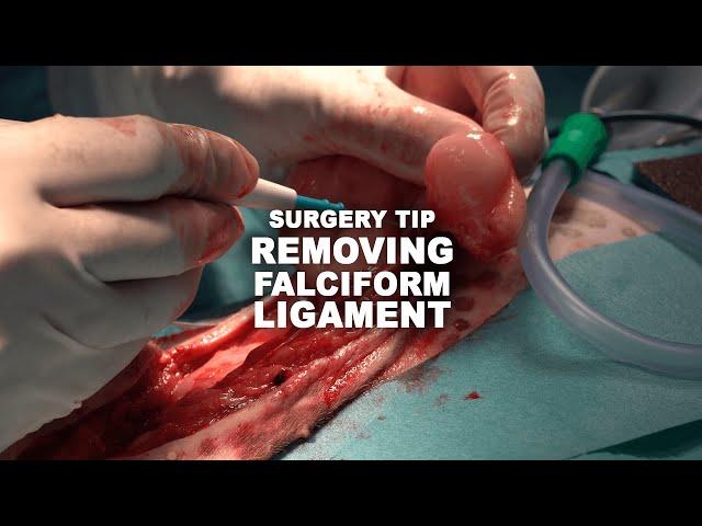 Surgery Tip Falciform YT