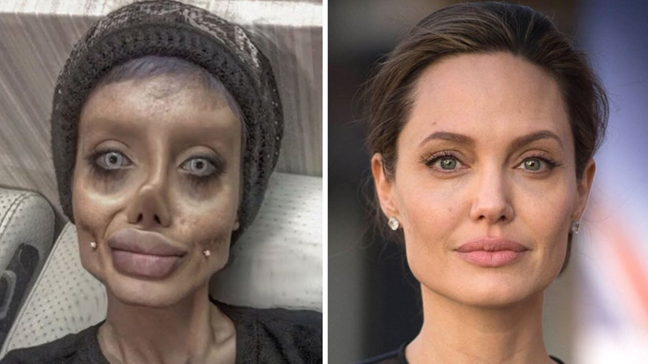 Teen Had 50 Surgeries To Look Like Angelina Jolie Justin -5695