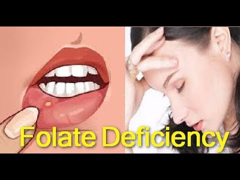 7 Common Signs and Symptoms Of Folate Deficiency.. & How to Reverse It