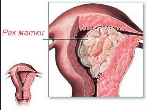 Рак матки, лечение, причины, симптомы, профилактика.