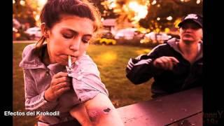 Krokodil, la droga que carcome la piel , droga zombie  efectos,consecuencias