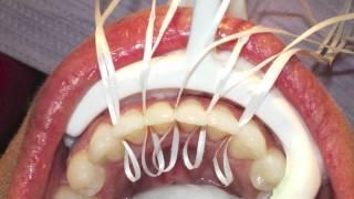 Platzierung von Ober- und Unterkiefer Retainern (Orthodontics)