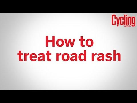 How to treat road rash