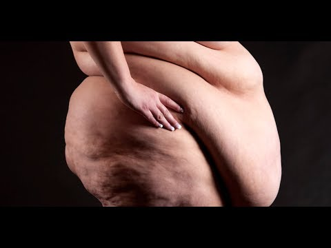 The physiological changes of Obesity