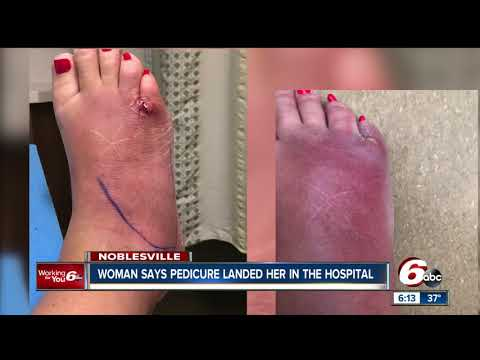 Woman claims she got a serious foot infection after pedicure at a Noblesville spa