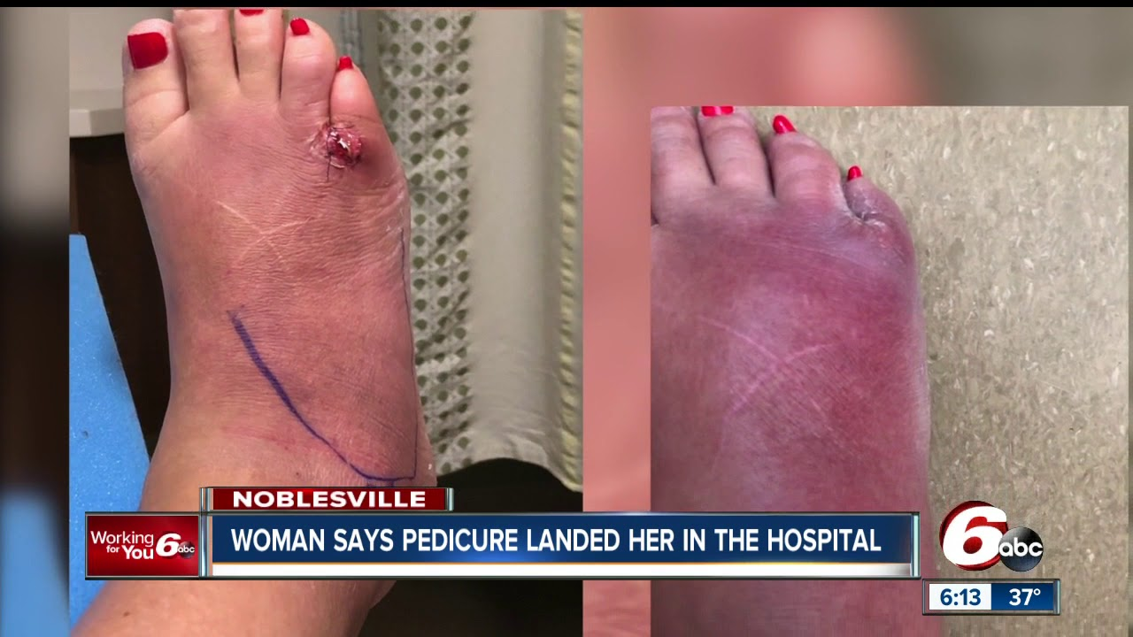 Woman claims she got a serious foot infection after pedicure at a ...