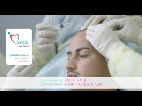 زراعة الشعر| الدكتور محمد العراقي| الليزر| التجميل|