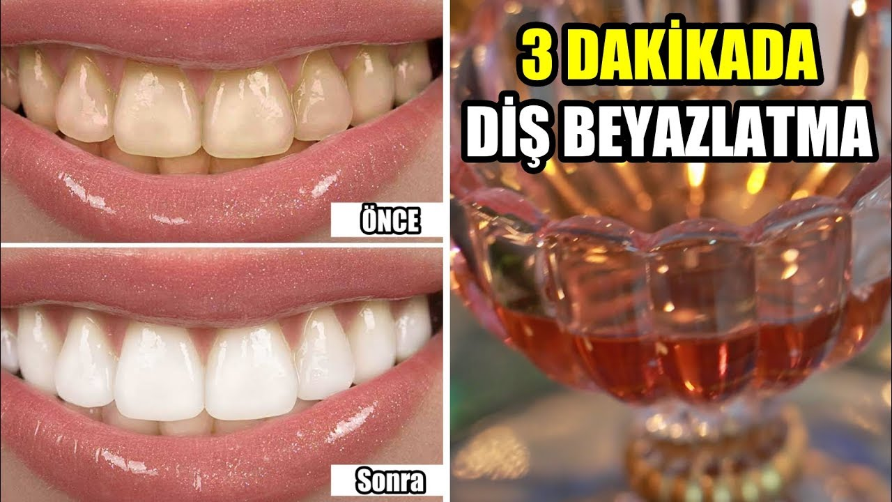 ŞAKA YAPMIYORUM : 3 DAKİKADA Dişleriniz BEMBEYAZ Olacak !  (EVDE DOĞAL UYGULAMA)