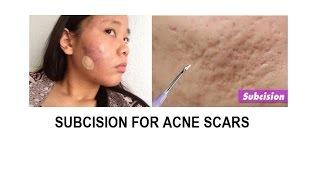Video Acne scar treatment: Subcision and TCA cross download MP3, 3GP, MP4, WEBM, AVI, FLV November 2018