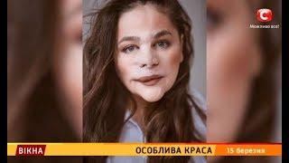Особлива краса – Вікна-новини – 15.03.2019