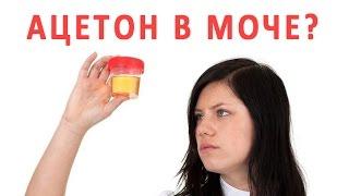 Что делать, если обнаружен ацетон в моче?