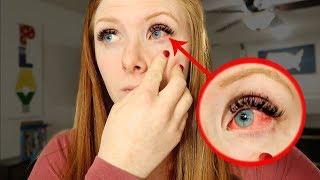 WHY my eye looks like this