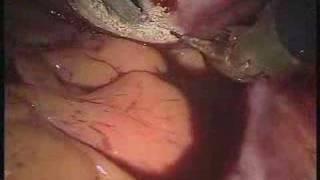 Podcast: da Vinci Radical Hysterectomy for treatment of...
