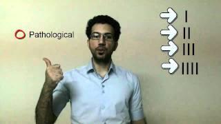 Diuresis disturbances-Polyuria,oliguria,anuria,nocturia