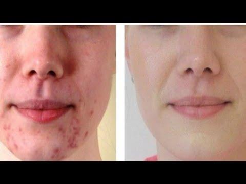 tips-menghilangkan-jerawat-dan-memutihkan-kulit-secara-alami