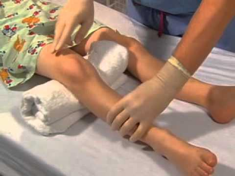 Intraosseous Catheter Placement in Children.avi