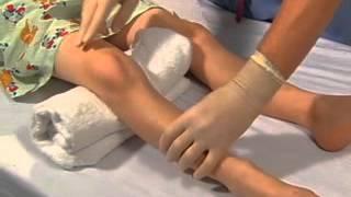 Intraosseous Catheter Placement in Children.avi