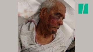 Arrest Made In Racist Assault Against 91-Year-Old Mexican Man