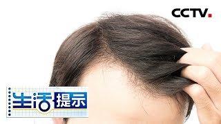 《生活提示》 20190730 年轻人 你的头发还好吗| CCTV