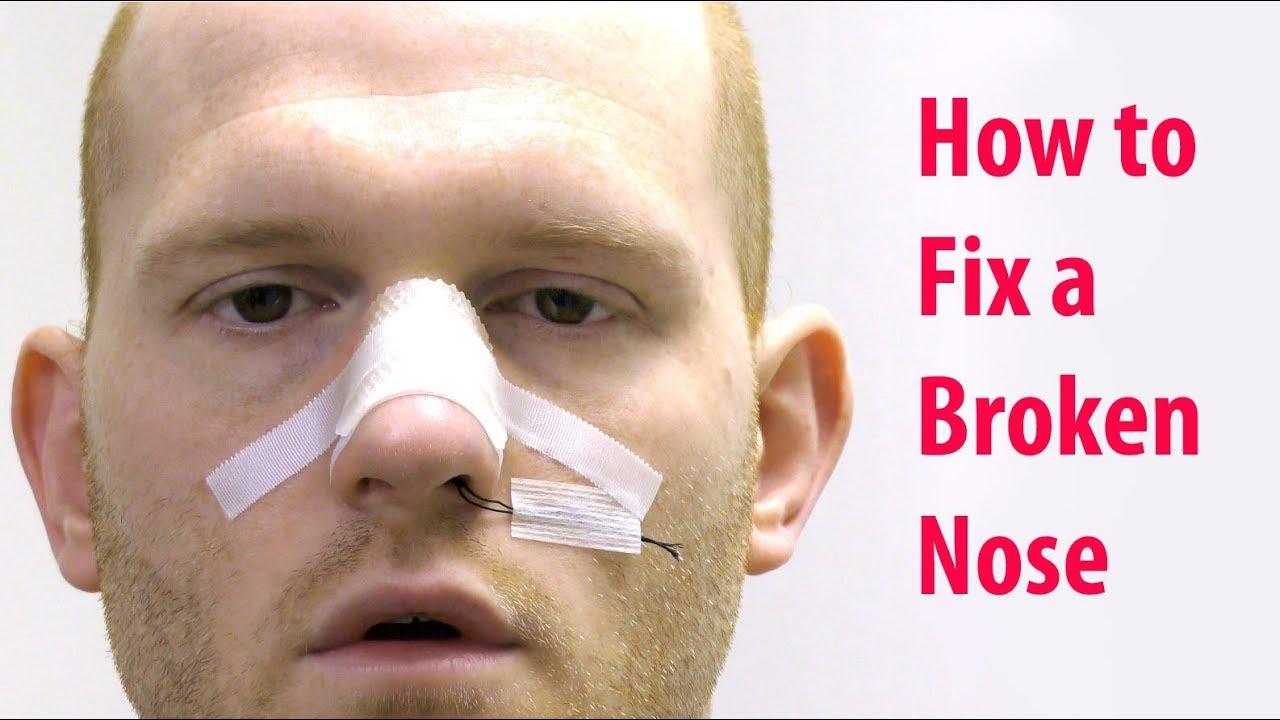 How to Fix a Broken Nose without Sedation (Closed Nasal Reduction)