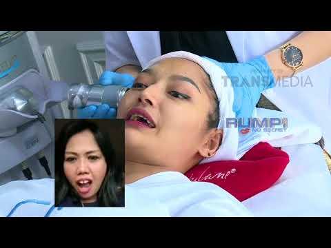 RUMPI - Fakta Tentang Lagu Siti Badriah Yang Viral (9/7/18) Part1