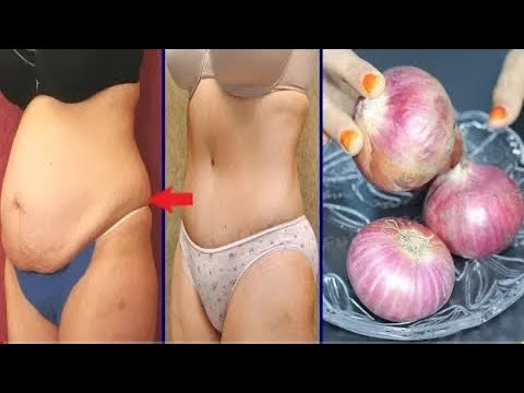 Lose weight without exercise( 5Kgs )Apple cider vinegar /weight loss/No Exercise/fatcu