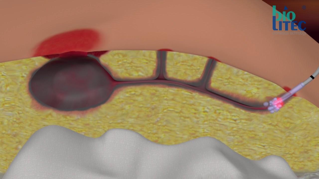 operație video varicoză laser