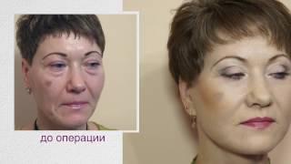 Подтяжка лица - невероятный результат! Пластическая операция до и после.