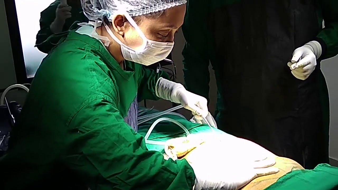 Vaser liposuction And Abdomen Ludhiana Punjab – by Dr Prerna Mittal-9815711571