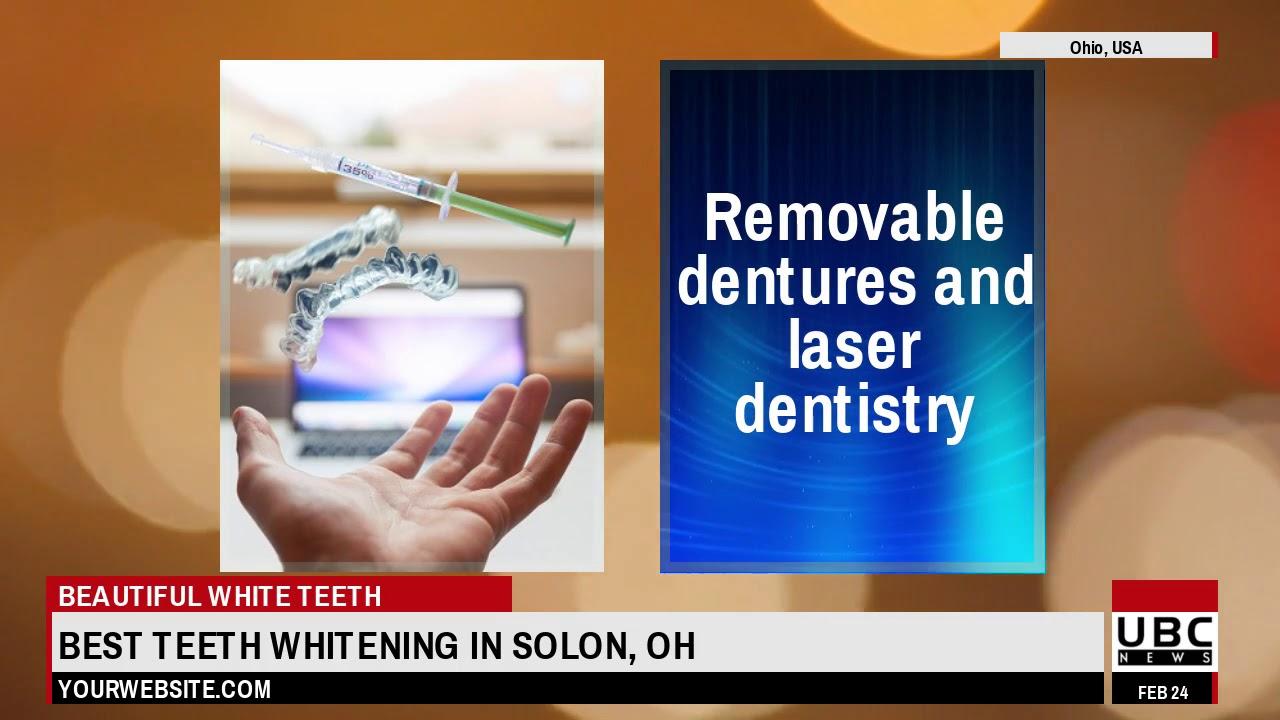 Best Teeth Whitening in Solon OH