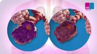COPD - wat gebeurt er in je longen?