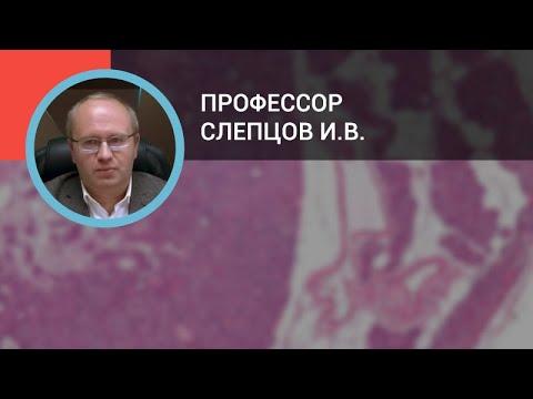 Профессор Слепцов И.В.: Диагностика и лечение первичного гиперпаратиреоза