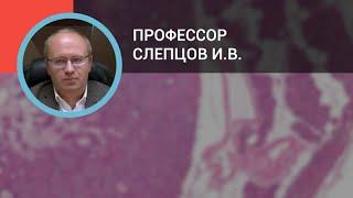 видео Гиперпаратиреоз