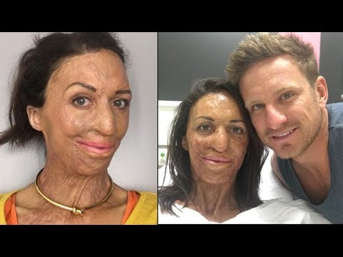 Turia Pitt and Michael Hoskin love story
