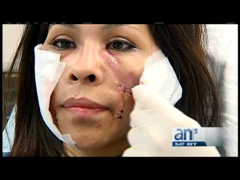 Joven muestra resultados tras cirugías que le salvaron la cara -  América TeVé