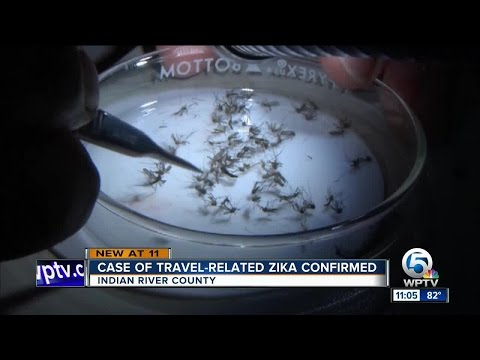 Florida Department of Health confirms travel-related Zika Virus case in Indian River County