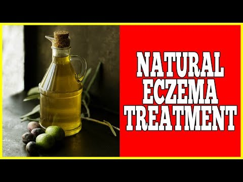 Natural Eczema Treatment – Easy Powerful Natural Eczema Treatment