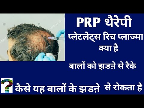 PRP platelets rich plasma therapy for hair loss treatment in hindi