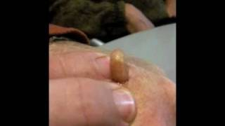Man Squeezes Botfly from Hand