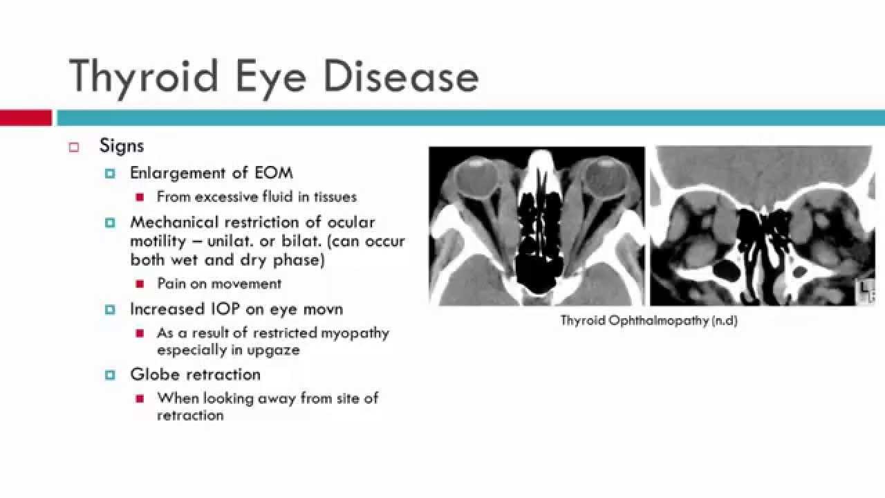 Thyroid Eye Disease Characteristics Youtube
