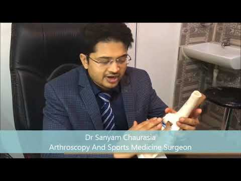 Best Knee Surgeon In Delhi/India- PCL Avulsion Fracture Fixation