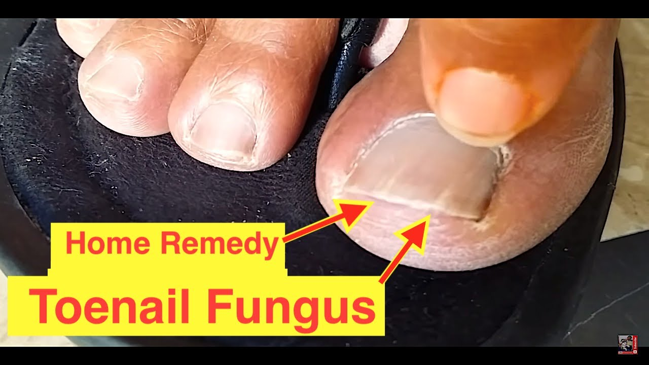 SOLVED - Home Remedy Cure for Toenail Fungus | Cure Nail Fungus with ...