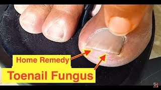 SOLVED - Home Remedy Cure for Toenail Fungus | Cure Nail Fungus with Vicks VaporRub