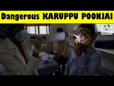 How to Identify Black Fungus Cases l Dangerous KARUPPU POONJAI l In4net