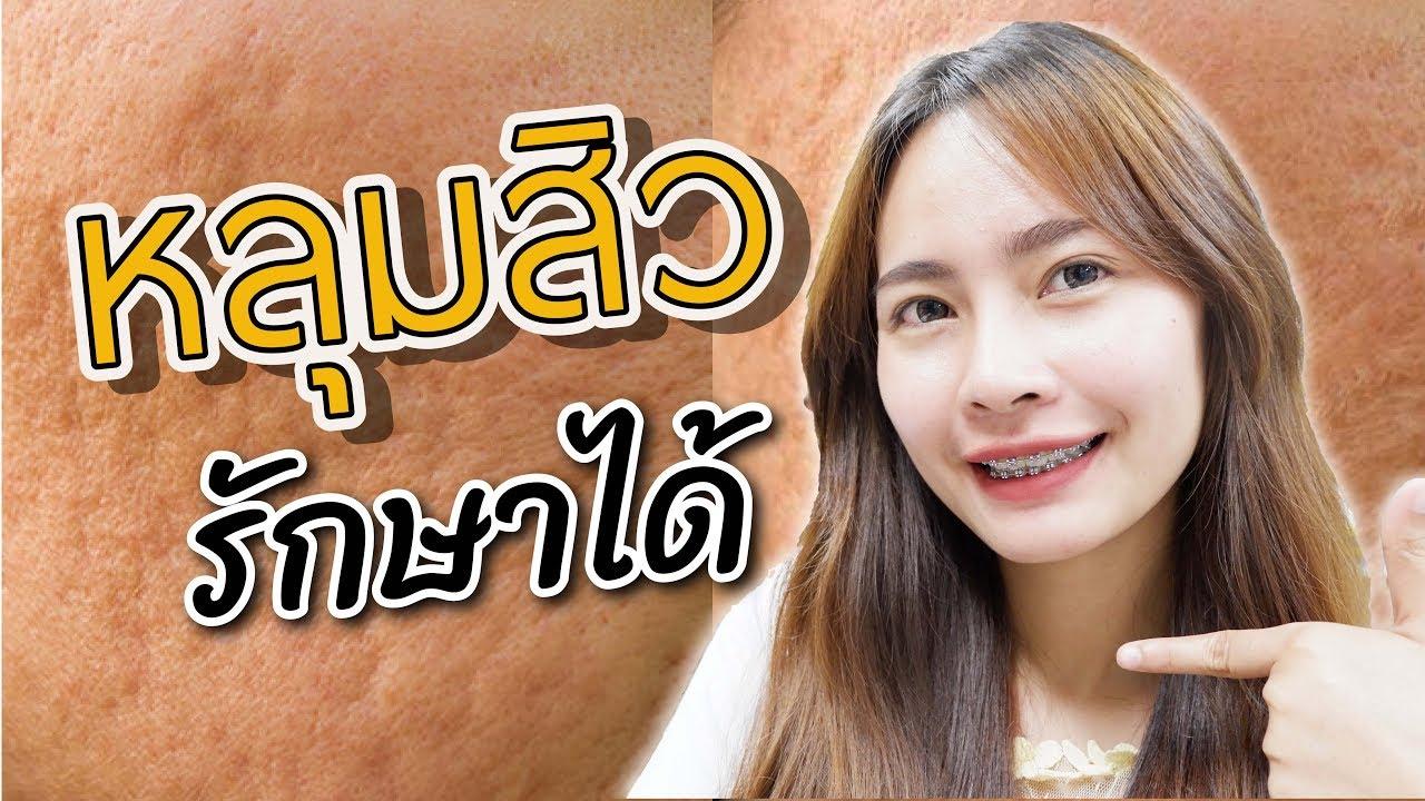 #43 หลุมสิว รักษาได้!! (Acne scar treatment) | เภสัชท่องโลก 🌏